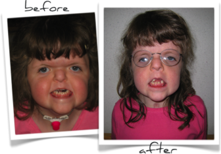 Apert Syndrome